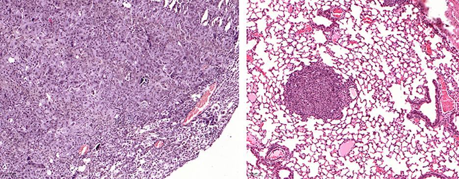 Tracking Down False Parkers in Cancer Cells