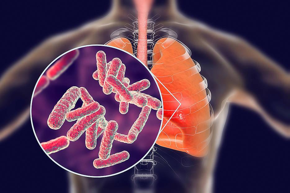 Tuberkulose ist eine hochansteckende Infektionskrankheit, die über den Luftweg übertragen wird und hauptsächlich die Lunge befällt. Jedes Jahr sterben geschätzte 1,7 Millionen Menschen weltweit daran.