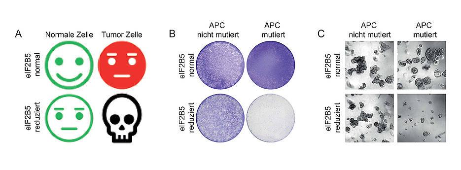 Wird das Gen elF2B5 gehemmt, bekommt das Darmkrebszellen mit einer APC-Mutation nicht gut: Sie sterben ab. Links eine schematische Darstellung, in der Mitte Zellkulturen, rechts Organoide.