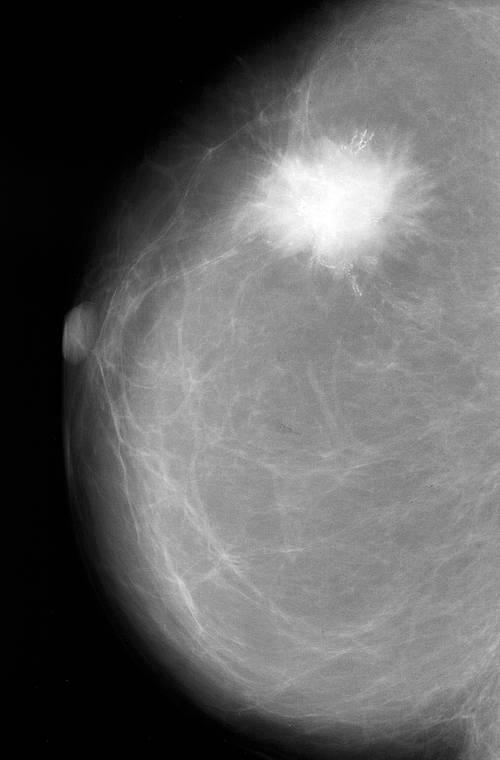 brustkrebs stipendien