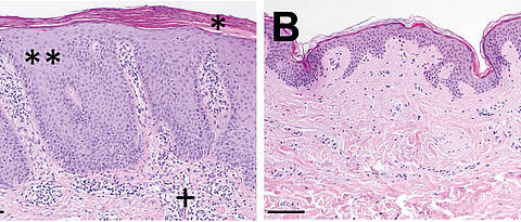 Histological skin examination: Increased scaling (*) is found in psoriasis (A) compared to healthy skin (B) and a visible extension of the topmost skin layer (epidermis, **). Below a cluster of inflammation cells (+).