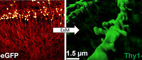 Super-resolution images made in Würzburg: Expansion microscopy ExM can be used to precisely depict fine structures of the brain whose shape changes during learning and memory processes. Pyramid cells from the hippocampus of the mouse line Thy1-eGFP can be seen.