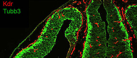 Distribution of endothelial cells (red) and neuronal cells (green) in the brain of adult mice. (Photo: team Gessler)