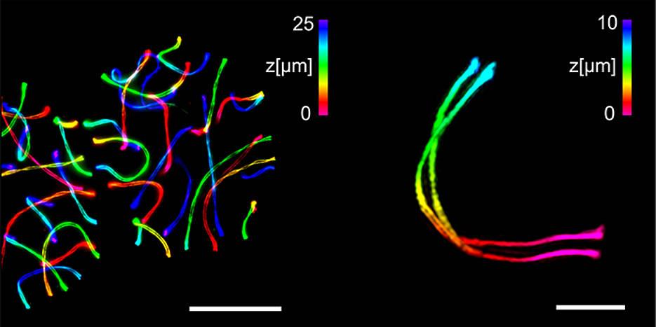 Links zwei spermienbildende Zellen, die mit ExM-SIM expandiert und mit einem beugungsbegrenzten Mikroskop abgebildet wurden. Rechts die detaillierte 3D-Aufnahme eines einzelnen synaptonemalen Komplexes. Die 3D-Information ist farblich kodiert, der Messbalken links entspricht 25 Mikrometer, der rechts drei Mikrometer.