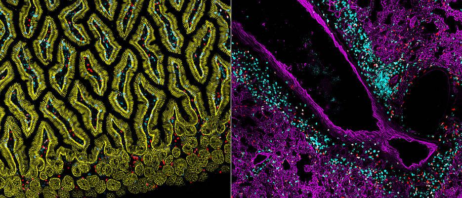 Würzburger Wissenschaftler erforschen Immunzellen in verschiedenen Geweben, hier zum Beispiel ILC2s (rot) oder T-Zellen (blau) in der Lunge (rechts) oder in der Schleimhaut des Dünndarms (links).