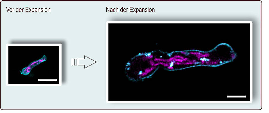 In expansion microscopy, the preparation is magnified more than four times. Here, a germ tube of Aspergillus fumigatus is shown before and after expansion; the scale corresponds to ten micrometers. The plasma membrane (turquoise) and the mitochondria (pink) were stained. (Picture: Ulrich Terpitz / University of Würzburg)