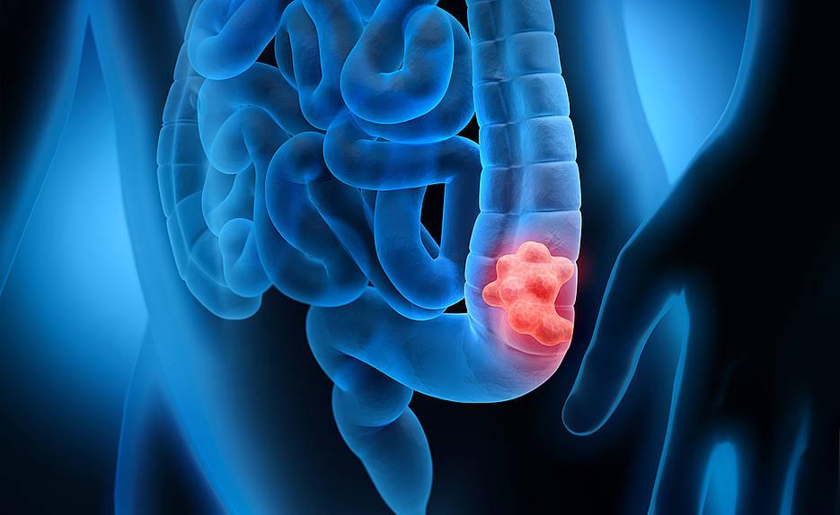 Tumoren am Dickdarm sind die zweit- bzw. dritthäufigste Tumorart bei Frauen und Männern.